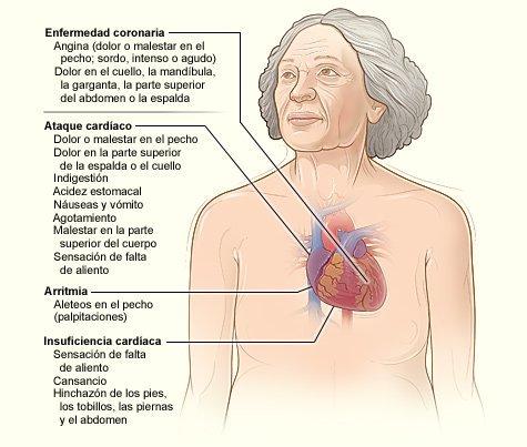 Infografía sobre dolores causados por ataques al corazón   Foto: Wikimedia