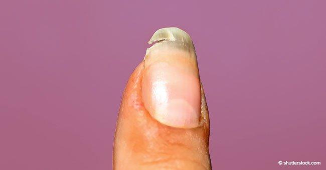 Ongles cassés ? Cette astuce facile vous aidera à les réparer rapidement