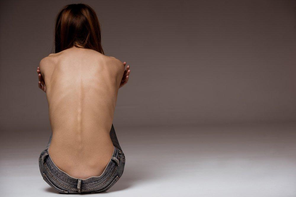 Una chica con anorexia de espaldas. Fuente: Shutterstock