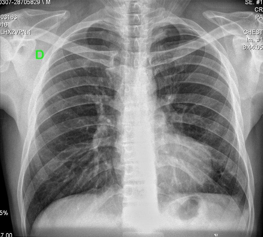 Rayos X de tórax. | Foto: Wikipedia