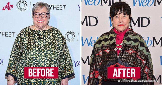 Remembering When Kathy Bates Stunned with Photos after Losing Almost 60 Pounds