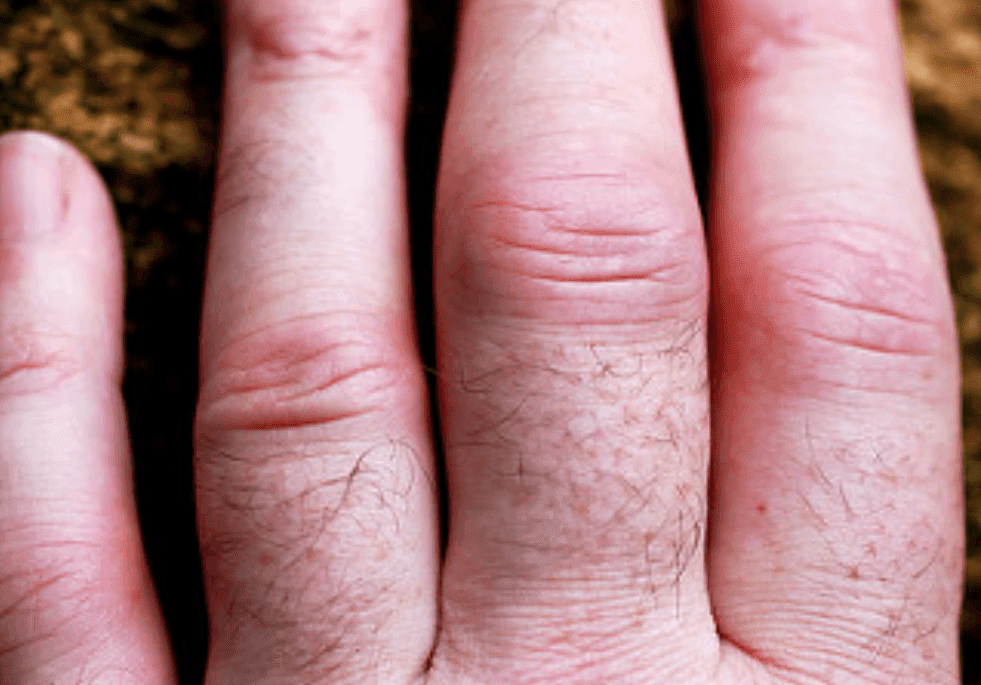 Inflamación en la articulación de los dedos. | Imagen: Flickr