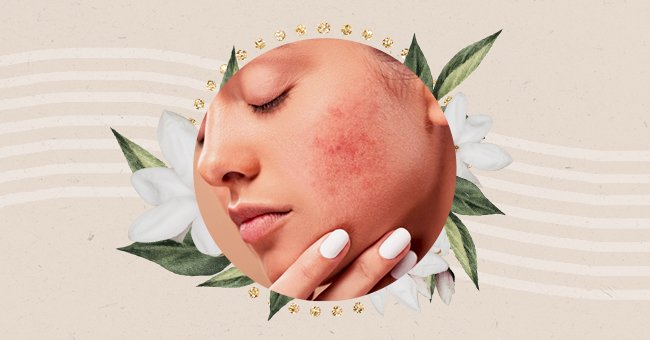 Exploring The Difference Between Sensitive & Sensitized Skin