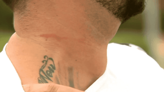 The marks on Brandon Penrose's neck after the confrontation | Photo: 9News