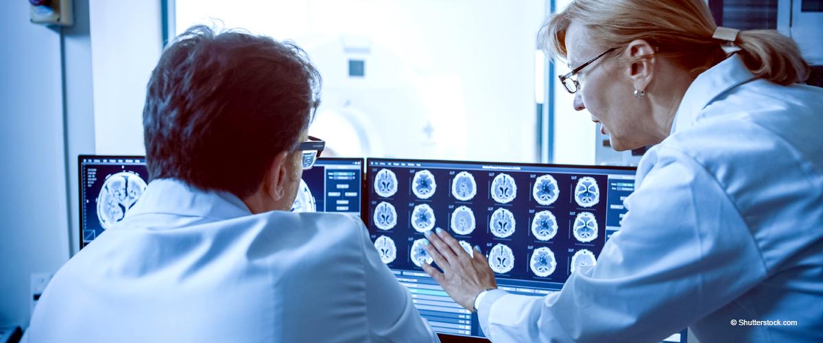 Tumeur cérébrale : quels sont les 11 principaux symptômes ?