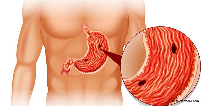 Le cancer de l'estomac : les signes et les symptômes