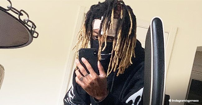 Rapper OG Maco Reveals He Has Skin-Eating Disease That Attacked His Face after Improper Treatment
