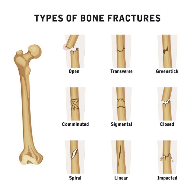Verschiedene Knochenfrakturen | Quelle: Shutterstock