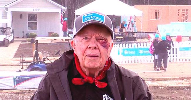 Jimmy Carter à l'événement Habitat pour l'humanité après une chute et 14 points de suture