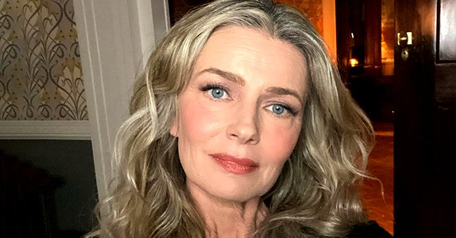 Paulina Porizkova Shares a Candid Selfie Showing Marks on Her Face from a Plasma Treatment