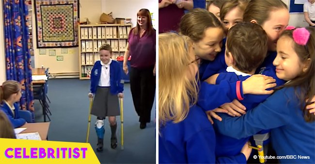 Story of how kids reacted after girl enters class on prosthetic leg for 1st time still melts hearts