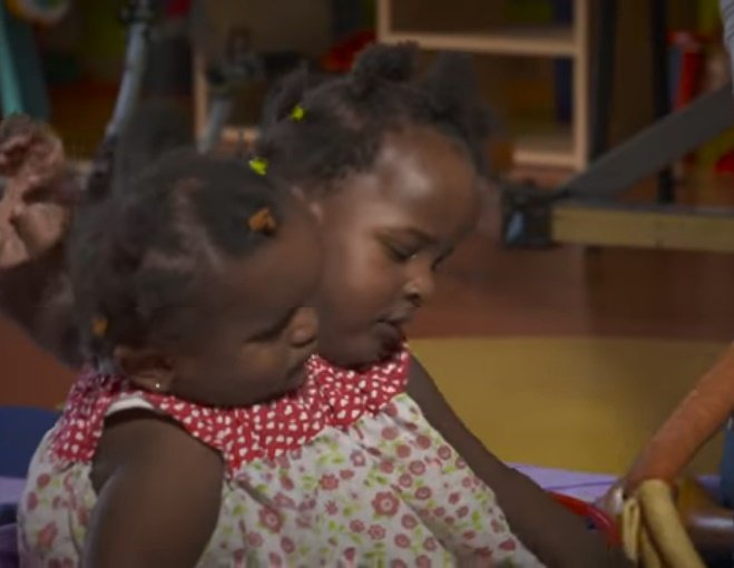 Las siamesas Ndeye y Marieme Ndiaye.  | Foto: YouTube/BBC News
