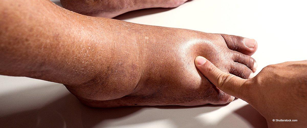 Geschwollene Füße: 9 Gesundheitsprobleme, vor denen sie dich warnen können
