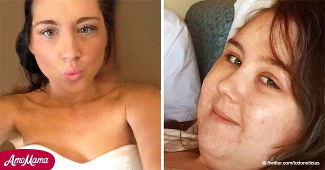 Eine junge Frau mit Krebs behauptet, sie wurde von ihrem Freund verlassen, weil sie zugenommen hatte