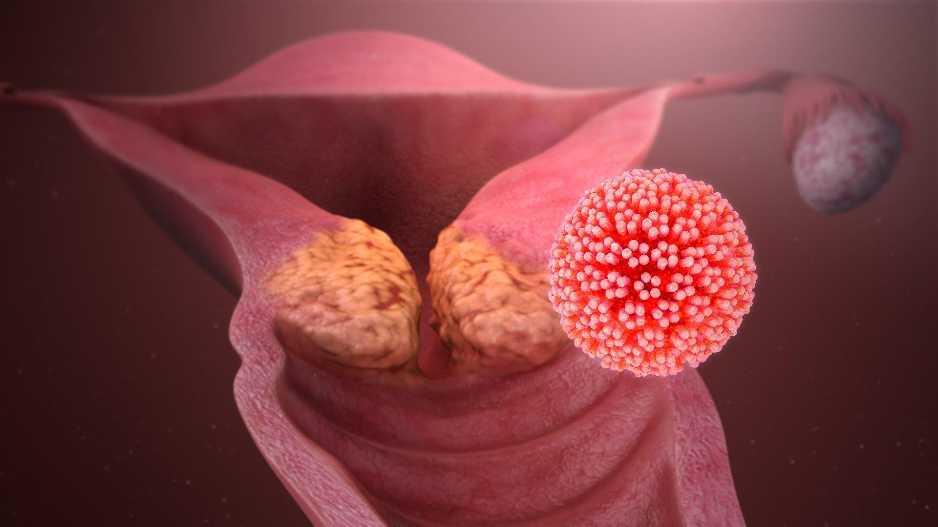 Cáncer cervical causado por el virus del papiloma humano (VPH). | Imagen: Wikipedia