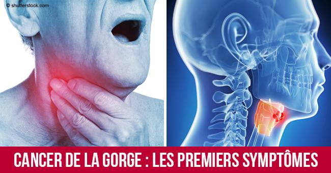 symptomes cancer gorge oesophage