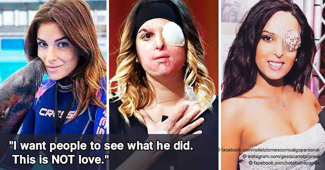 Beauty queen disfigured by boyfriend's acid attack raises her voice for victims