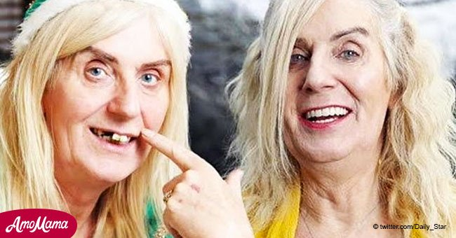 Transgender lottery winner shows off new $54K teeth after losing hers in an attack 7 years ago