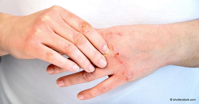 Afecciones cutáneas sutiles que pueden ser los primeros síntomas de la diabetes