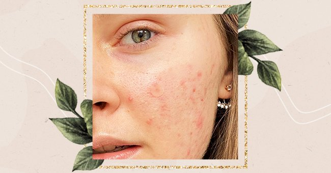 Vitamins That May Help Clear Acne