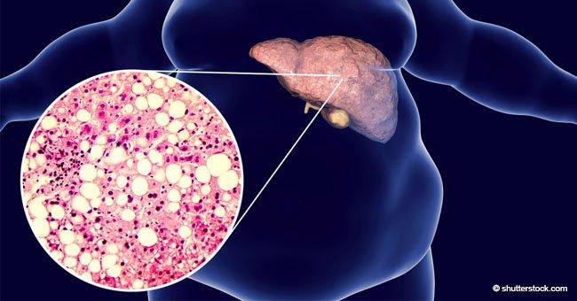 7 señales que advierten que tu hígado está saturado de toxinas