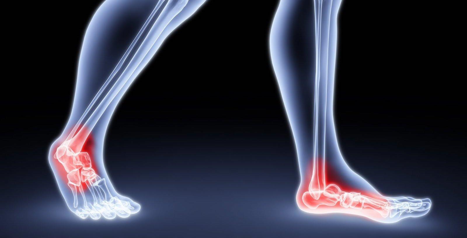 Une vue des pieds avec douleur aux chevilles. | Flickr
