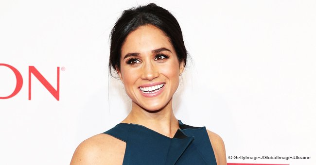 Woman Spends $30K on Plastic Surgery to Look like Meghan Markle, Reveals New Look at High Tea Event