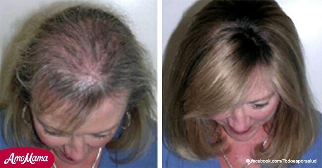 Este remedio te puede devolver tu hermoso cabello. Aplícalo en tu cuero cabelludo y míralo crecer