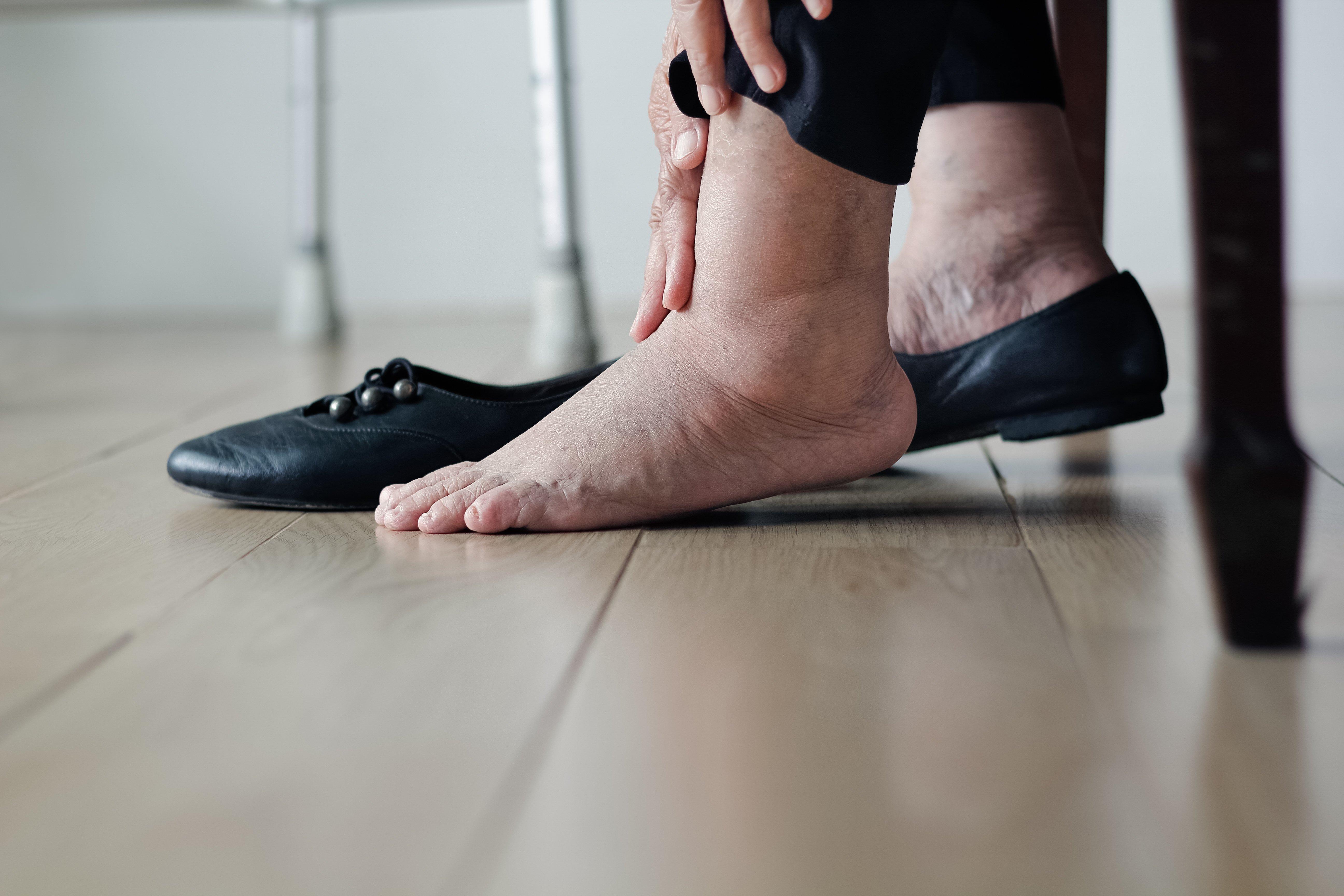 Frau reibt sich Beine | Quelle: Shutterstock