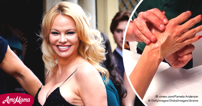 Pamela Anderson Shares Video of Bandaged Hands to Prove Ex-Boyfriend Adil Rami 'Crushed' Her