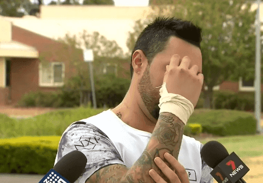 Brandon Penrose showing the several spots where he was injured, including his hands | Photo: 9News