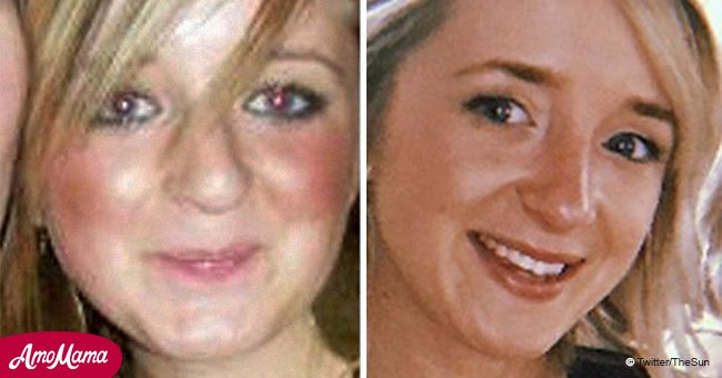 Une femme victime d'intimidation pour avoir eu le nez 'Pinocchio' a dû débourser 23 000 $ pour corriger sa première rhinoplastie bâclée