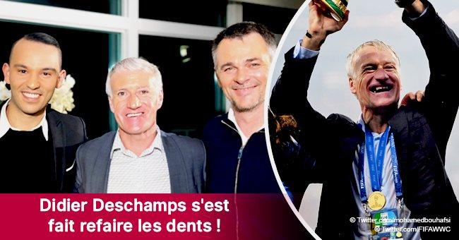 Après toutes les critiques, Didier Deschamps a enfin ses dents refaites!