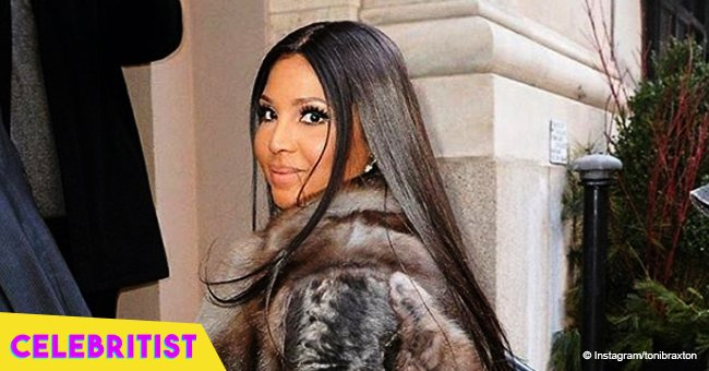 Toni Braxton shares new photo with father after plastic surgery rumors