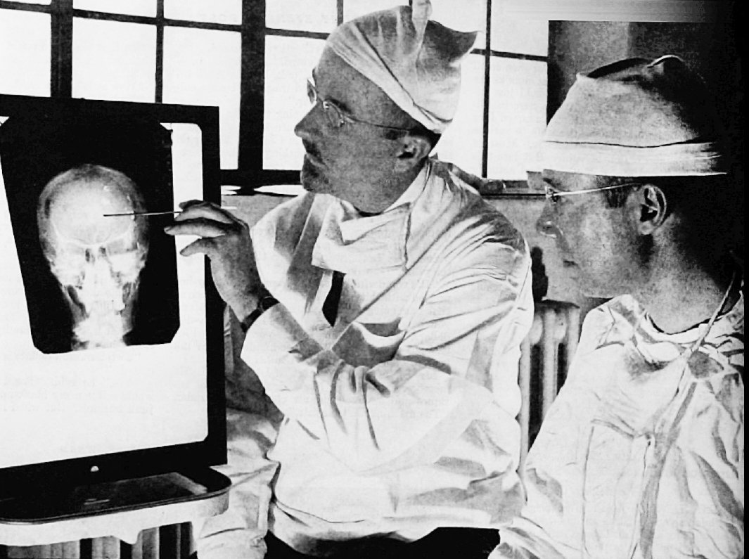 Dr. Walter Freeman and Dr. James W Watts, the doctors who performed Rosemary's lobotomy. Image credit: Wikimedia Commons