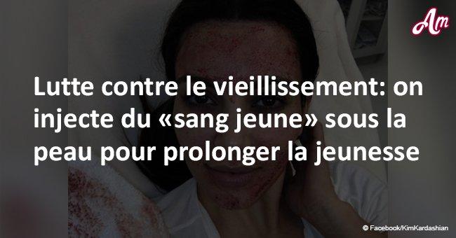 Lutte contre le vieillissement: on injecte du «sang jeune» sous la peau pour prolonger la jeunesse