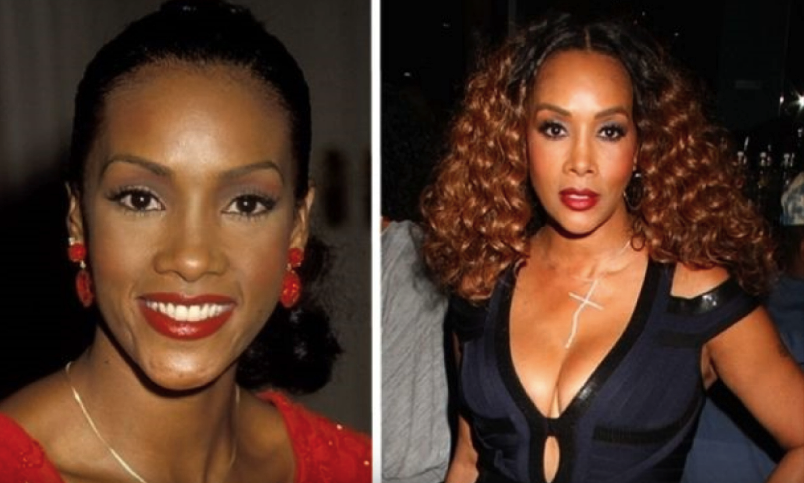 Image Credits: YouTube/Celebrity Plastic Surgery