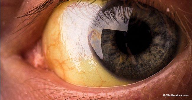 Síndrome Gilbert: común pero poco conocido mal que inicia con ojos amarillos y afecta tu vida