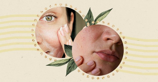 A Guide To Minimizing The Appearance Of Pores