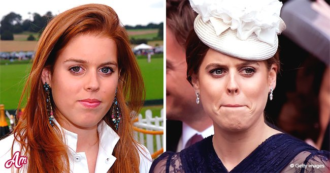 Princess Beatrice S Childhood Issues That She Still Suffers From