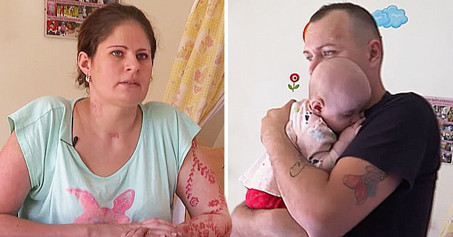 Woman Wakes up from a Coma after COVID-19 Complications and Discovers She Has Given Birth