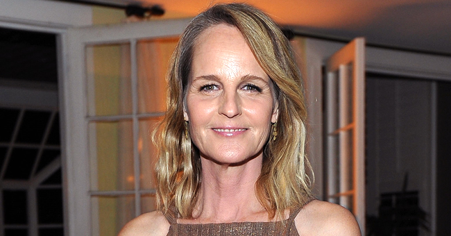 Helen Hunt of 'Mad about You' Shares First Photo 1 Week after Car Accident