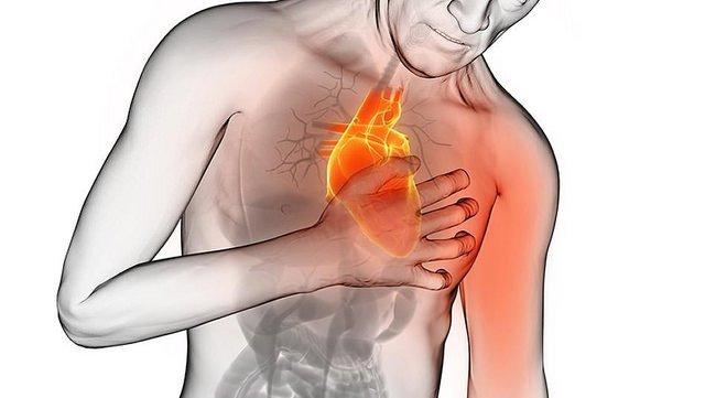 Dibujo representativo de un ataque cardiaco   Foto: Flickr
