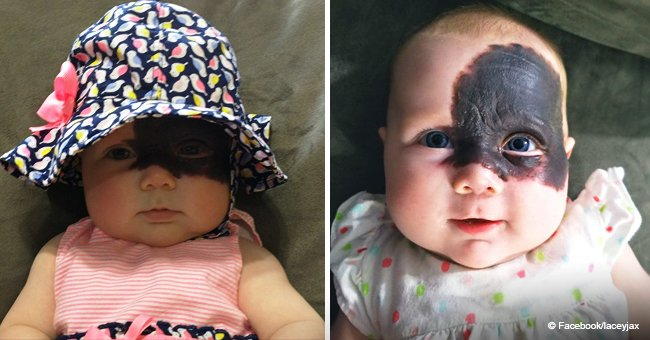 Meet the baby girl who has been dubbed 'little superhero' due to Batman-like birthmark on her face