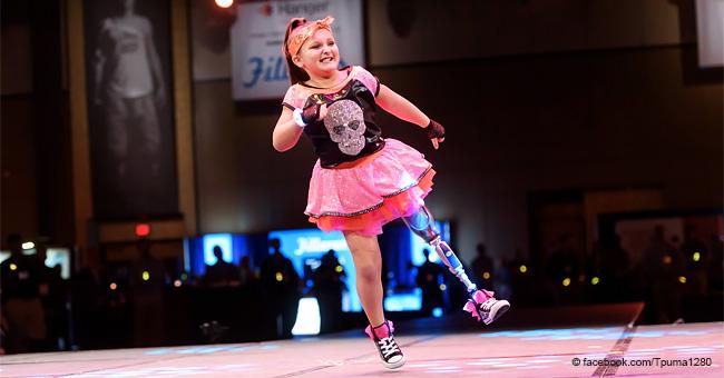 Niña de 8 años que perdió una pierna por bacteria come-carne se convierte en estrella de baile