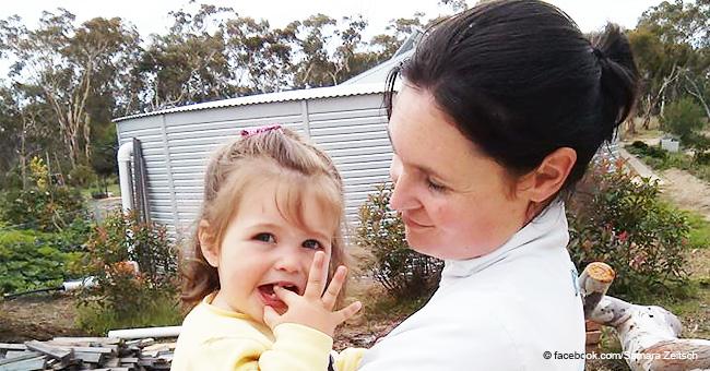 Niña de 7 años fue picada por tantas avispas que tuvieron que aspirarlas de su cabello
