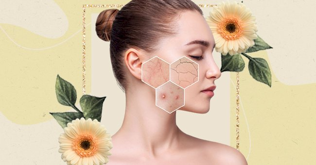 The Difference Between Sensitive And Sensitized Skin