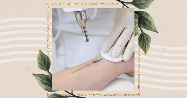 Exploring Tattoo Removal