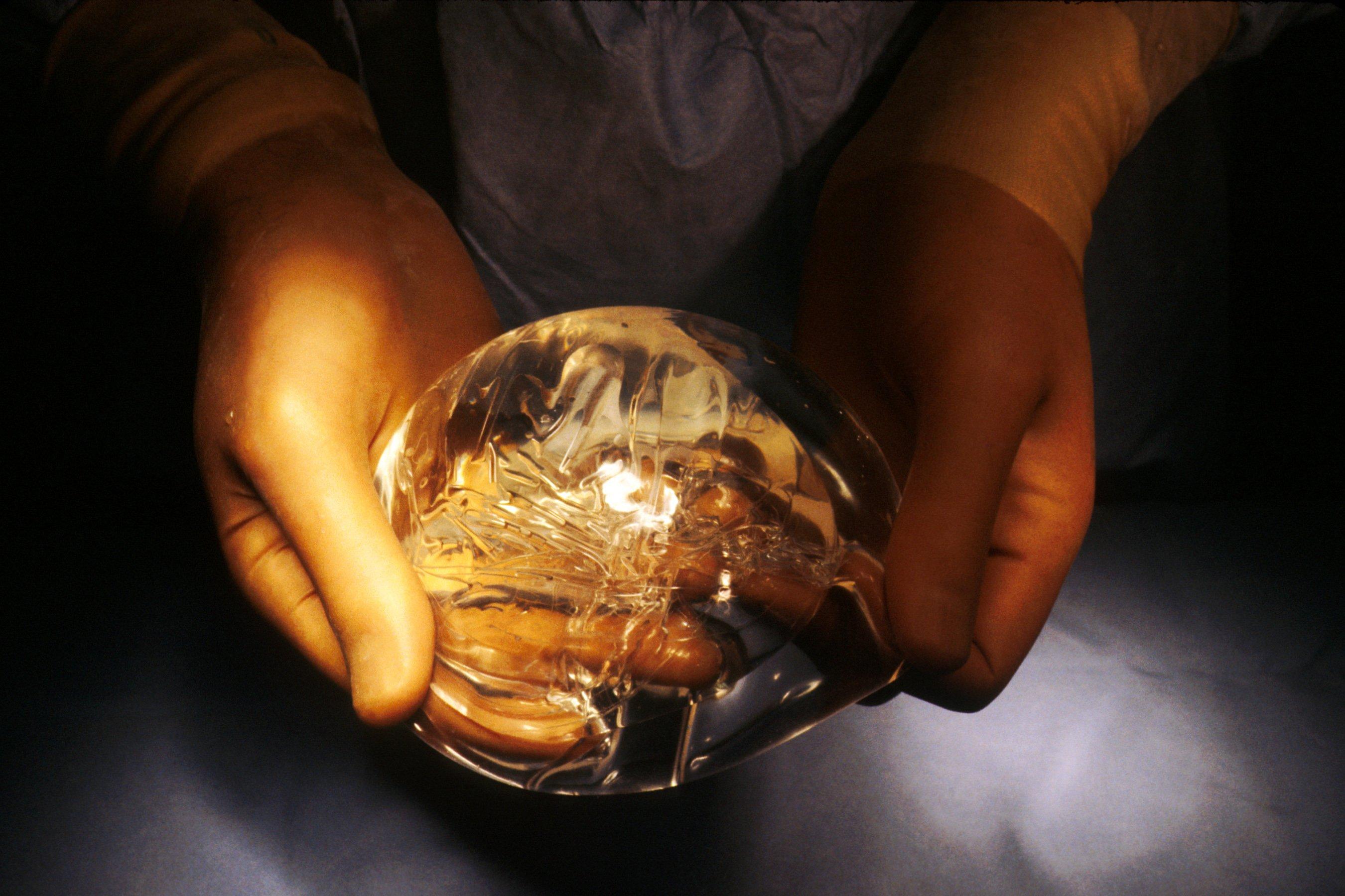 Image de l'implant mammaire | Image : Wikimedia Commons