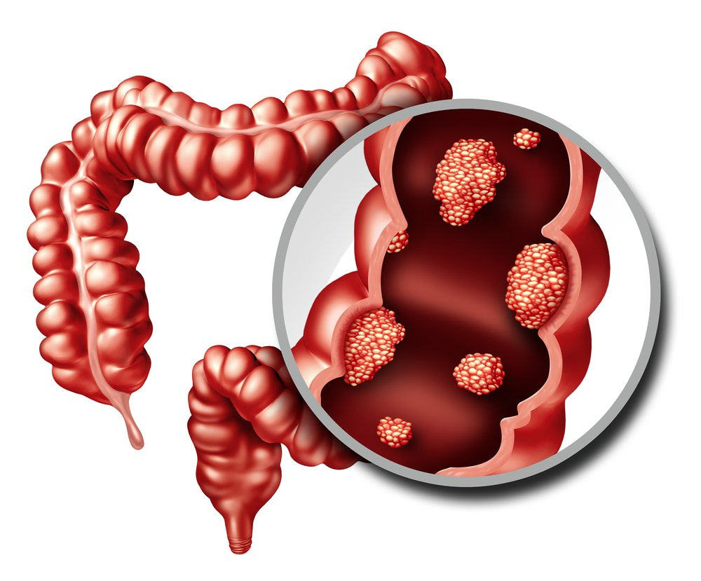 cancer colorectal / Source : Shutterstock